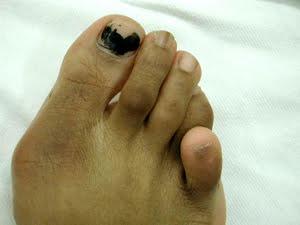 crossover_toe