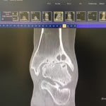 x-ray ankle3