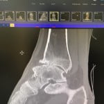 x-ray ankle4