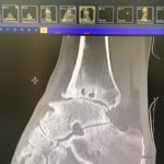 x-ray ankle5