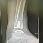 x-ray ankle6