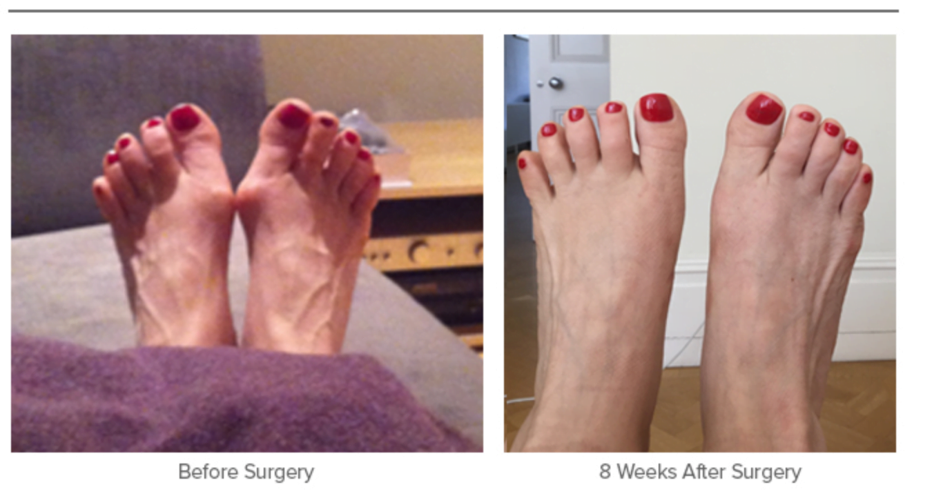 Bunion Surgery - Before and 8 Weeks After