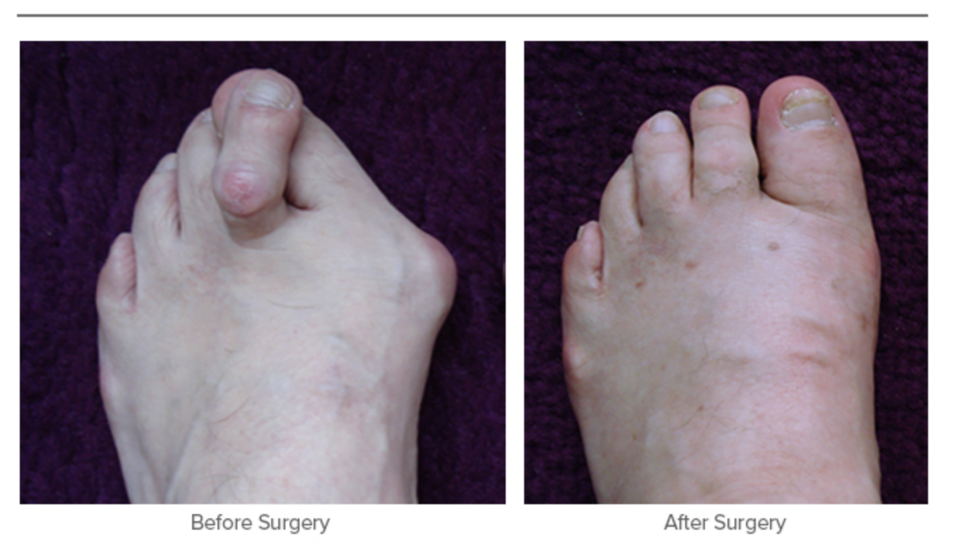 Bunion Surgery - Before and After Surgery