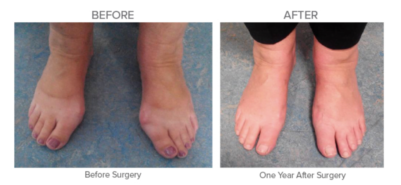 Bunion Surgery - Before and One Year after Surgery