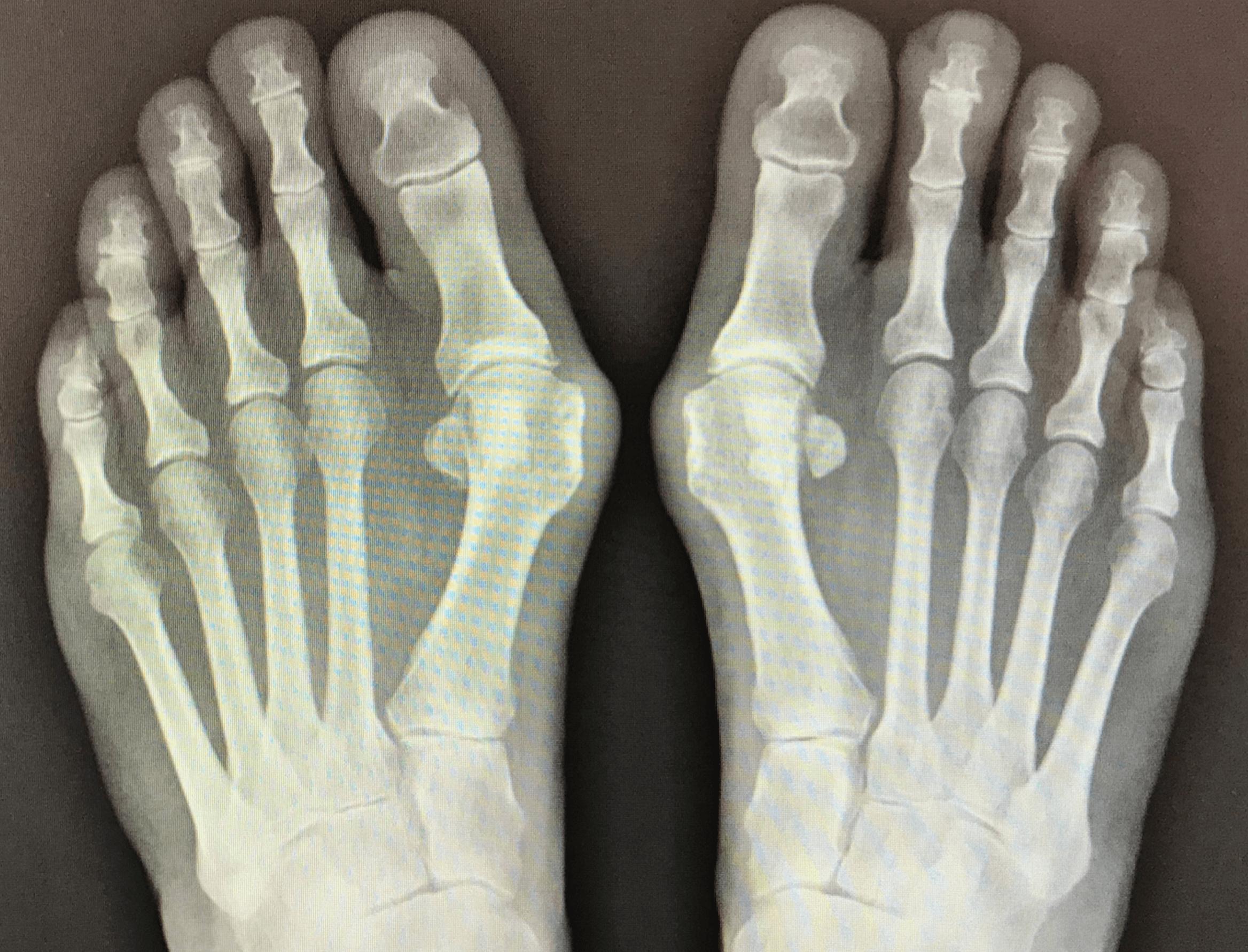 Bunion X-Ray