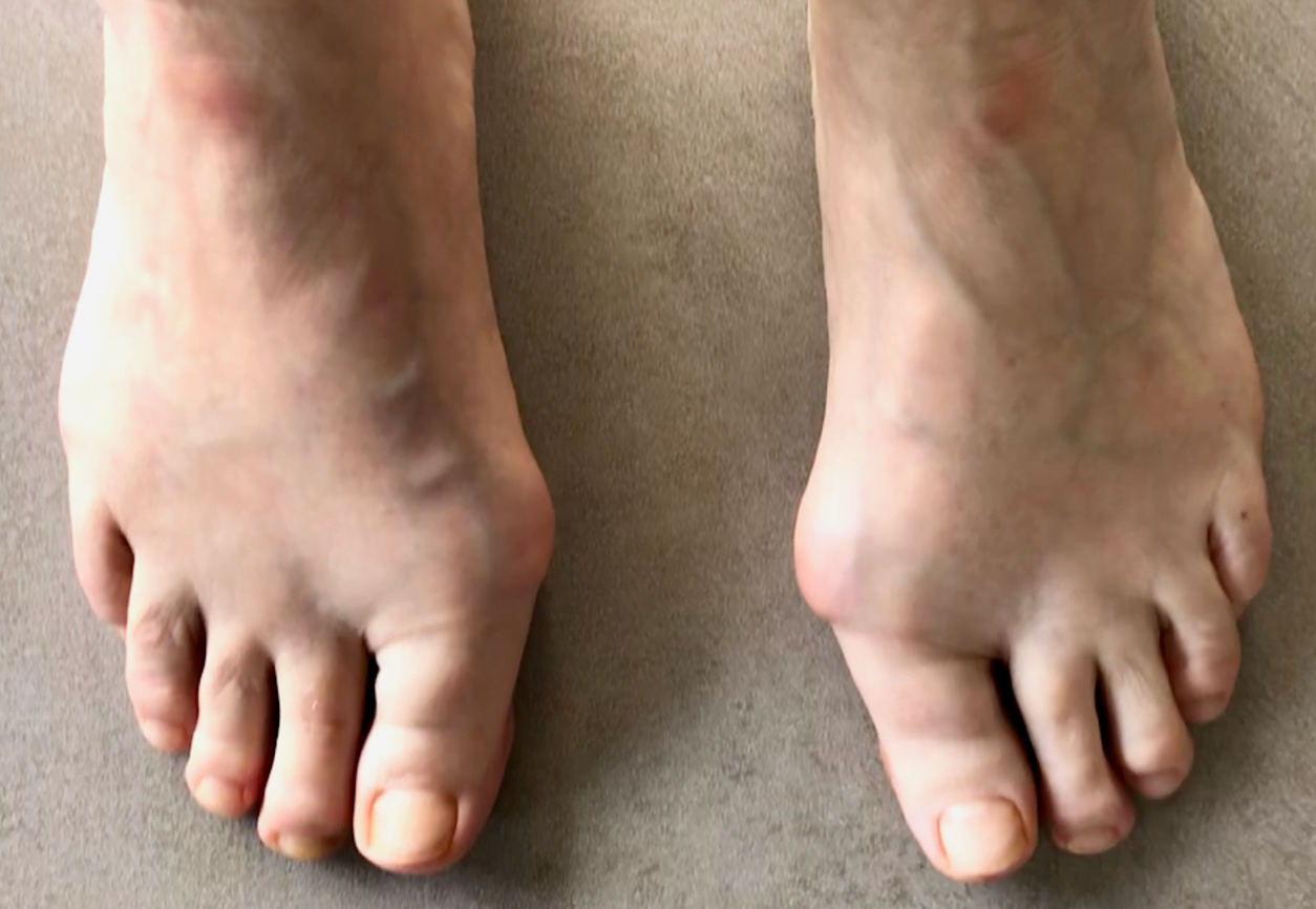 Bunions before Surgery