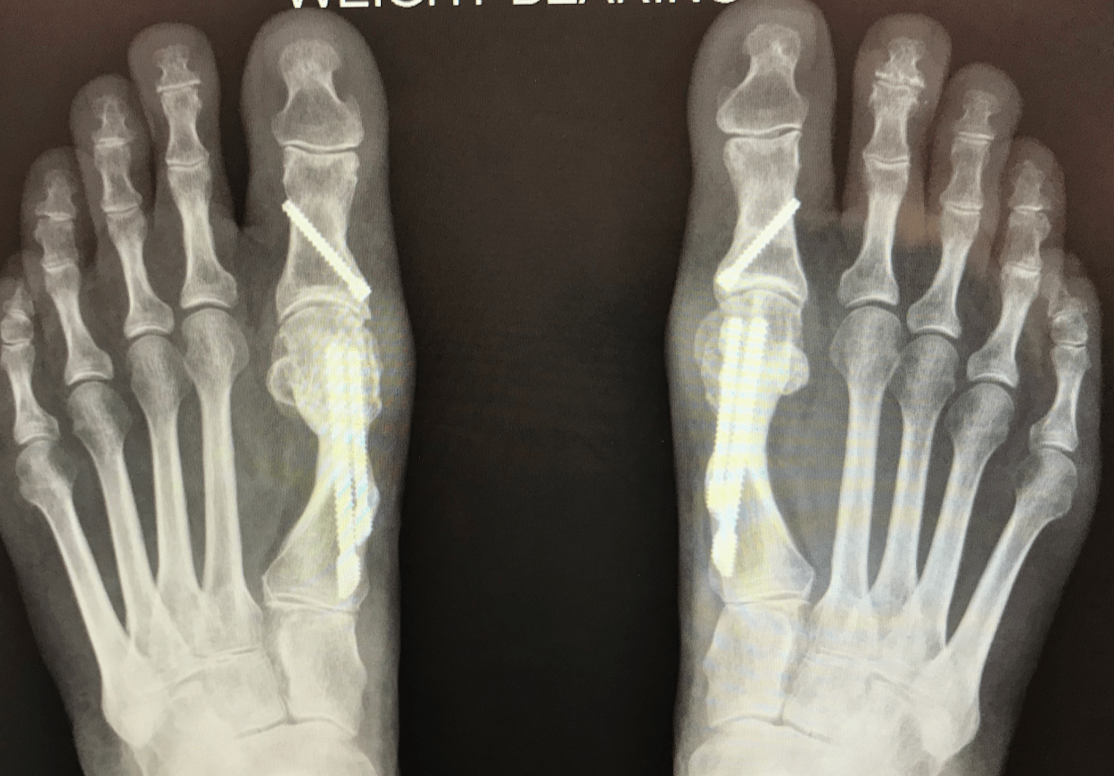 Bunion After Surgery X-Ray