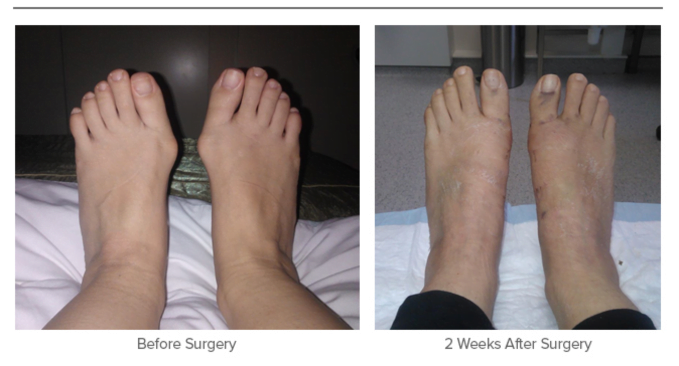 Bunion Surgery Before and 2 Weeks After