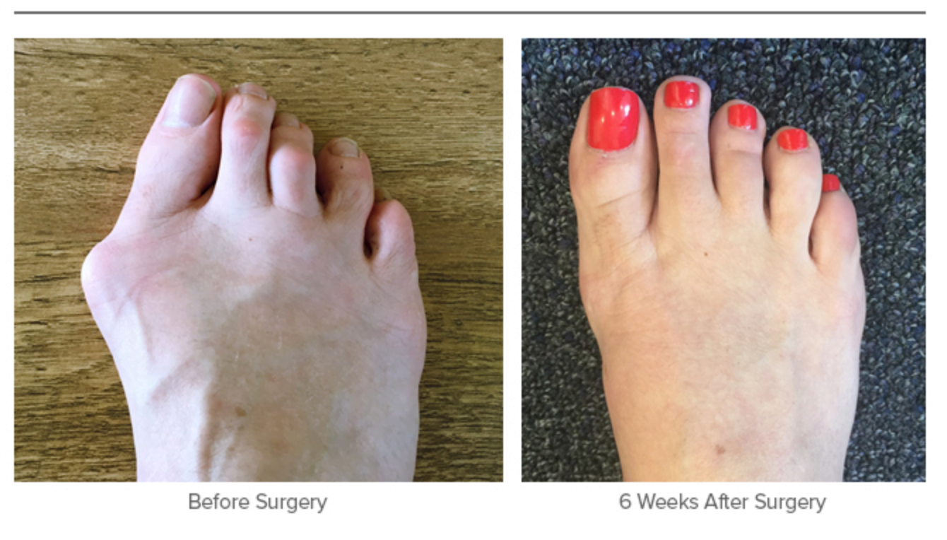 Bunion Surgery - Before and 6 Weeks After